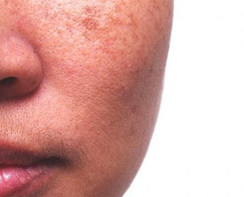 melasma on face