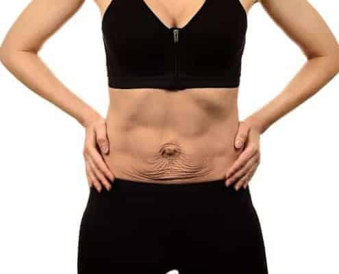 Woman with diastasis recti